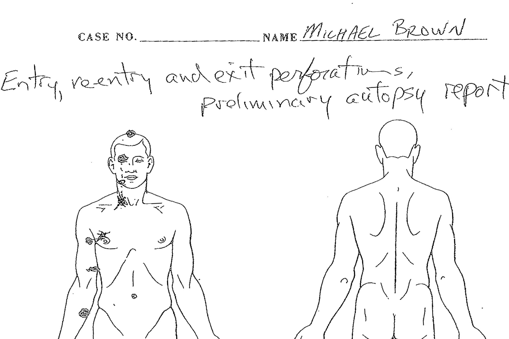 Michael Brown Autopsy 6 shots 2 two head shots shot in head offiical
