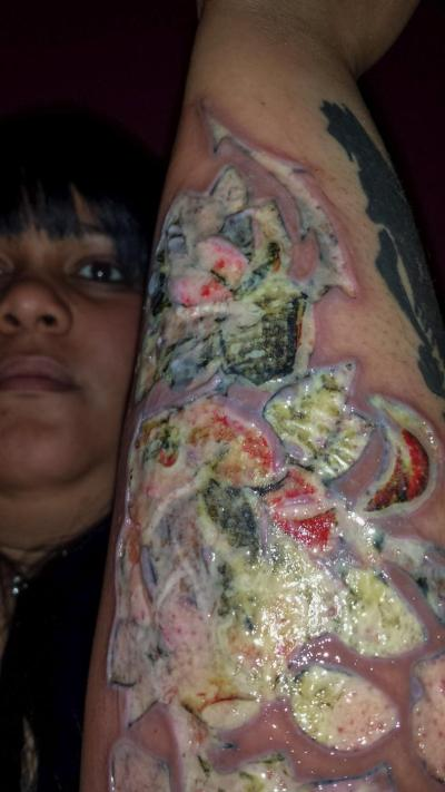 488234c7b Woman Sues Black Ink Studio for Infected Tattoo | The Source