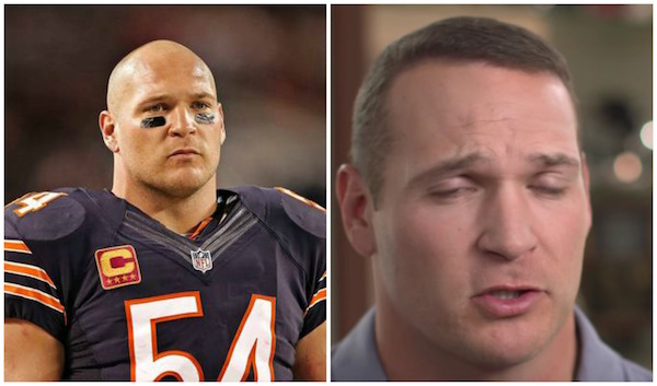 Brian Urlacher_Hair Transplant_The Source