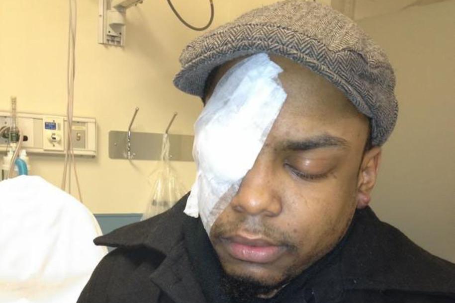 SOURCE: NYPost/Taj Patterson following his attack.