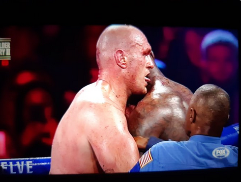 Twitter Erupts as the Victorious Tyson Fury LICKS Deontay Wilder's Bloody Neck
