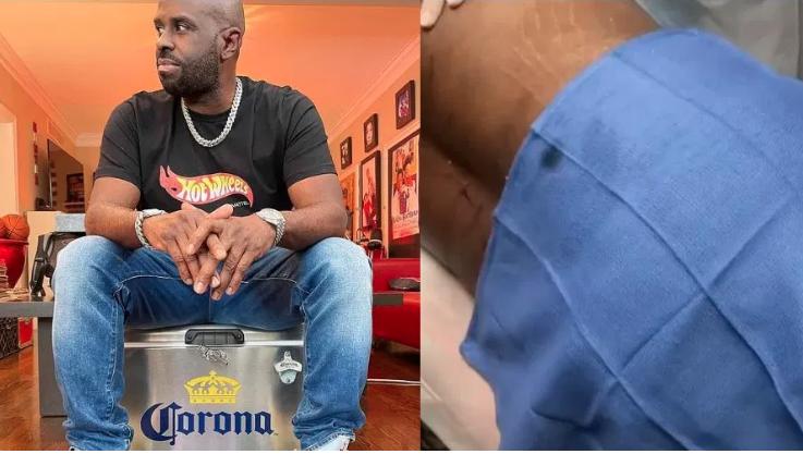 [WATCH] Funkmaster Flex Shows Off His Liposuction Procedure